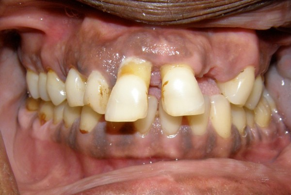 Full Mouth Dental Reconstruction