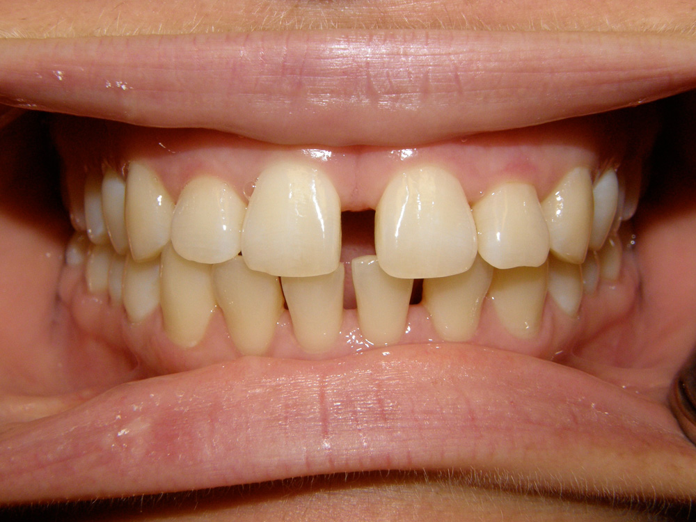 Before Orthodontic Treatment