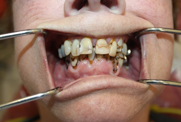Composite Resin Fillings Chicago