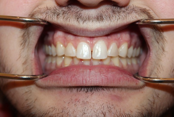cosmetic dentist chicago